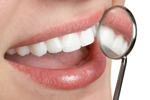 Dental Insurance: Is It Worth The Cost?