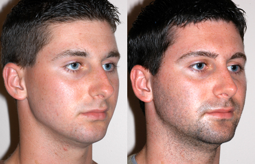 Things That You Need To Know About Rhinoplasty
