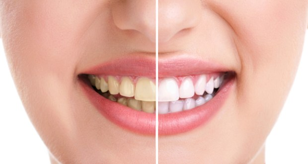 Why Your Teeth Are Yellow