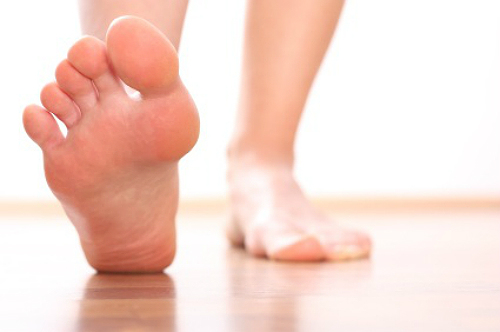 Manage Gout Flare-Ups