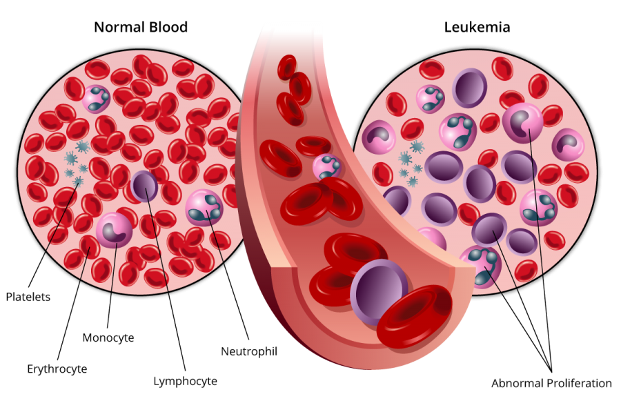 An Overview About Leukaemia Treatment