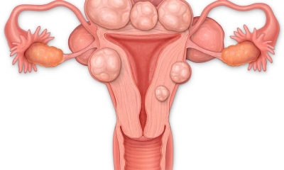 Uterine Fibroids: What Are Its Causes, Symptoms, and Treatments?