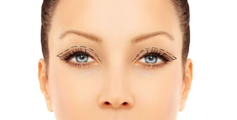 Reasons Why Men and Women Undergo Eyelid Surgery
